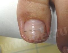 Коррекция вросшего ногтя скобами